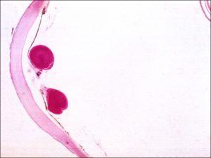 Mamalis Lens 42 unlabeled