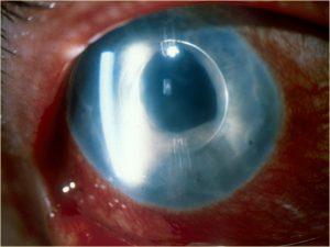Mamalis Lens 43 unlabeled