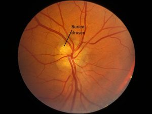 Mamalis Optic Nerve 24 labeled