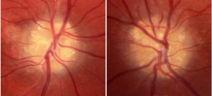 Mamalis Optic Nerve 25 unlabeled