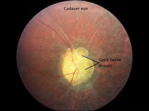Mamalis Optic Nerve 26 labeled
