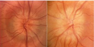 Mamalis Optic Nerve 27 unlabeled