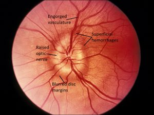Mamalis Optic Nerve 32 labeled