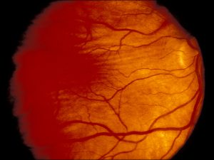 Mamalis Optic Nerve 41 unlabeled
