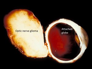 Mamalis Optic Nerve 45 labeled