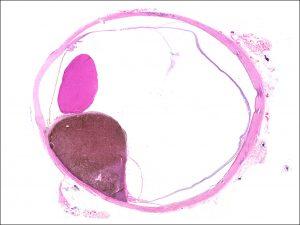 Mamalis Tumor 15 unlabeled