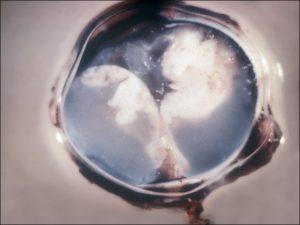 Mamalis Tumor 27 unlabeled
