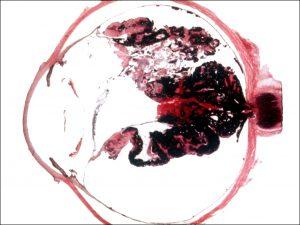 Mamalis Tumor 35 unlabeled