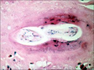 Mamalis Tumor 47 unlabeled