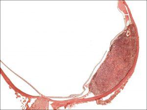 Mamalis Tumor 49 unlabeled