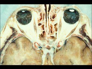 Mamalis Normal Eye 02