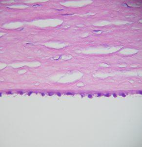 Mamalis Normal Eye 16