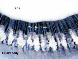 Mamalis Normal Eye 27