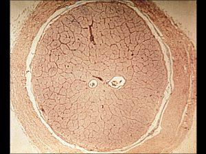 Mamalis Normal Eye 44