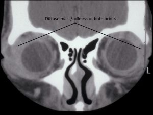 Mamalis Orbit 06 labeled