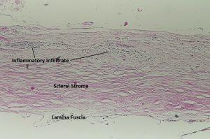 Mamalis Sclera 03 labeled