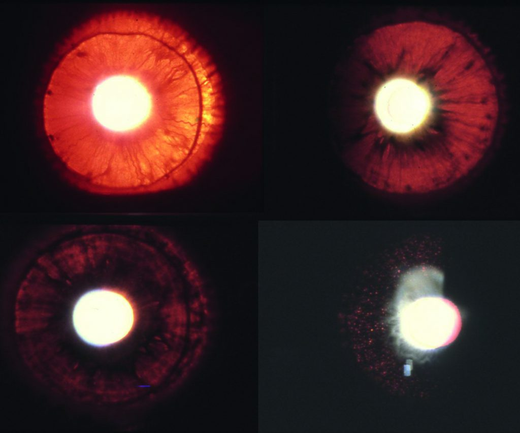 Grades of iris transillumination in eyes with albinism