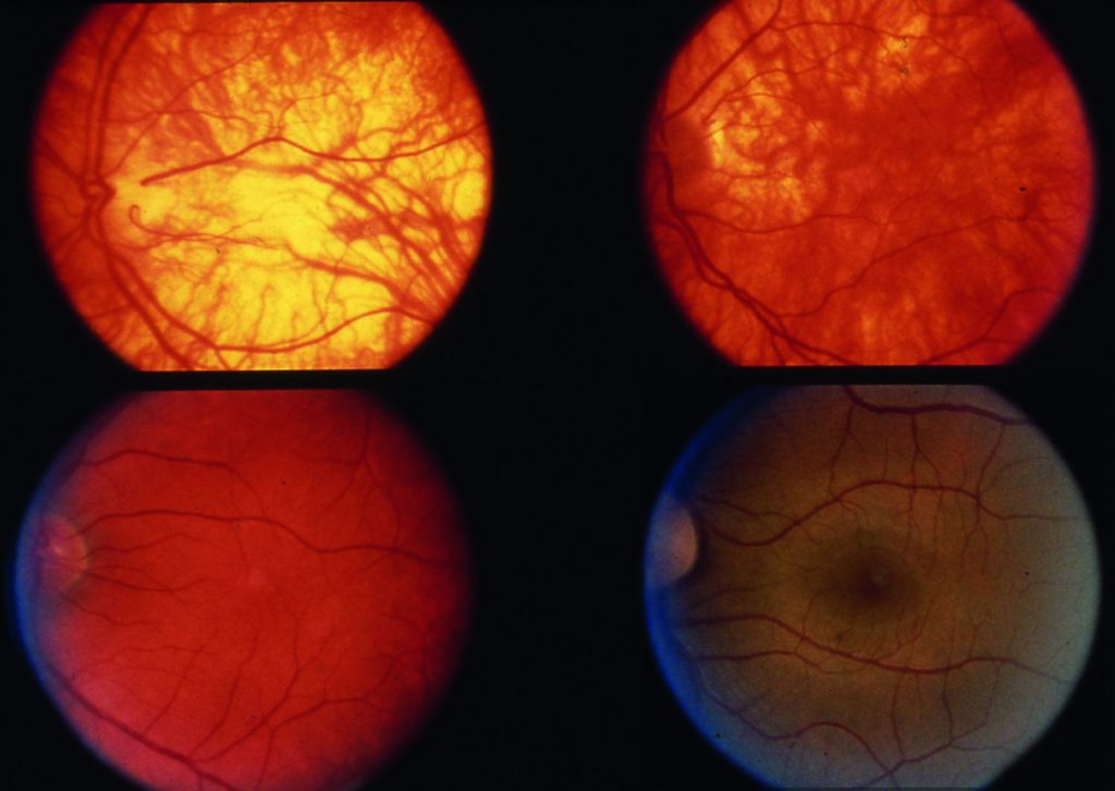 Comparison of RPE pigmentation and fovea between eyes with albinism and a normal eye