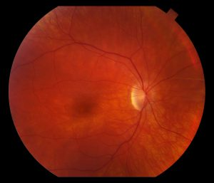"""Fundus exam revealed a """"beaten metal"""" macula and lightly pigmented peripheral retina (Figure 1-1)"""